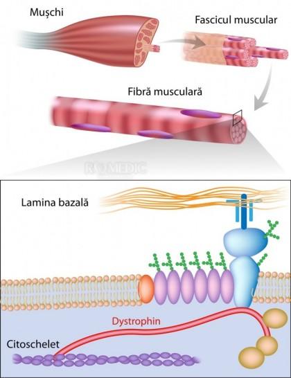 Distrofia musculara