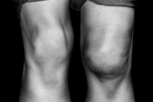 Osteofite