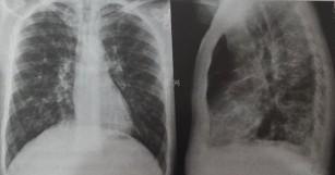 plămâni cu boli ale țesutului conjunctiv)