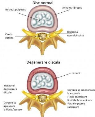 Boala de disc degenerativa