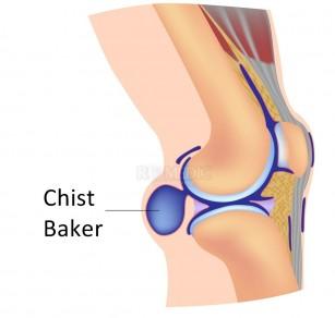 Chist Baker (chist popliteal)