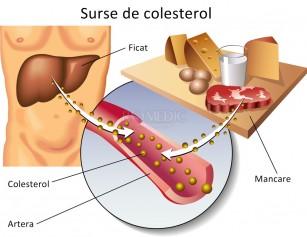Despre colesterol, cu dragoste