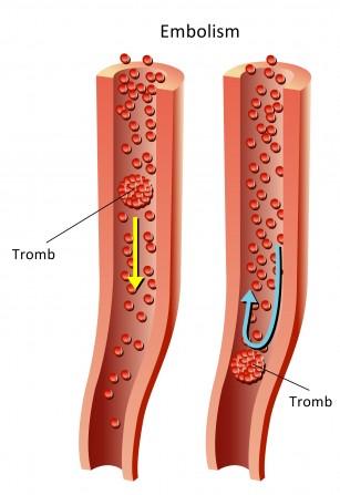 Boala tromboembolica puerperala