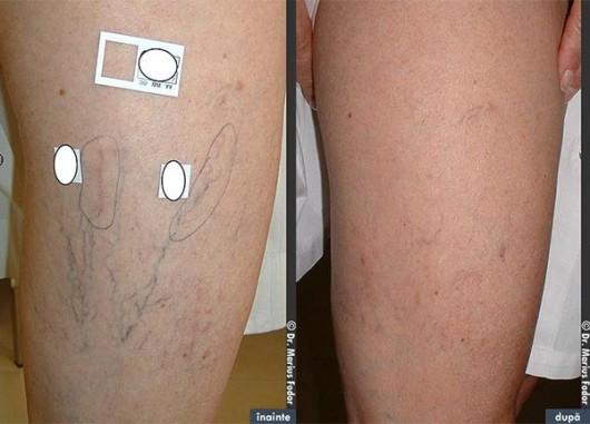 mușchii musculară varicoză terapia de presă la picior în varicoză