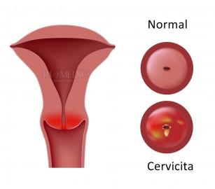 Leziunile benigne ale cervixului