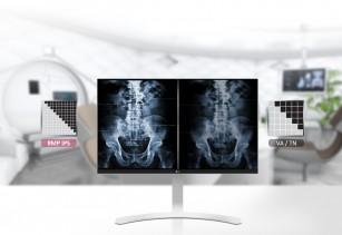 Importanța detaliilor în imagistica de diagnostic