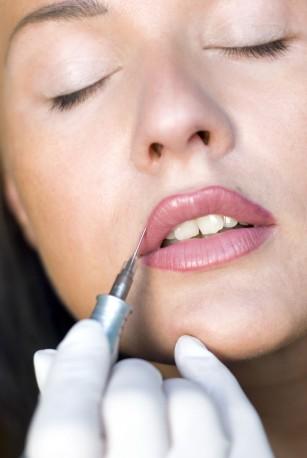 Tratamente injectabile pentru marirea buzelor. Acum ai reducere la fiolele de acid hialuronic!