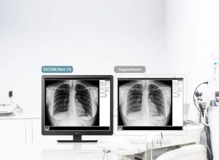 Display-ul ideal de la LG pentru imagistica medicală