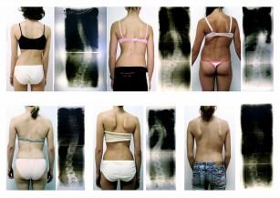 Scolioza si tratamentul in scolioza (Terapia Schroth)