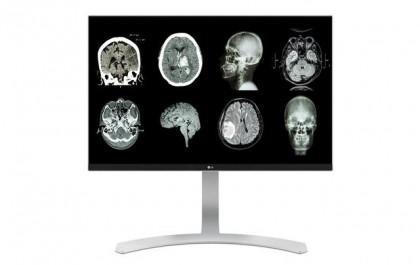 Imagini precise pentru un diagnostic corect și rapid