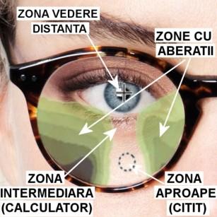 Si totusi, cum e cu lentilele progresive?