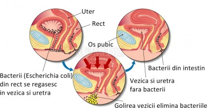 Infectiile tractului urinar - infectii urinare