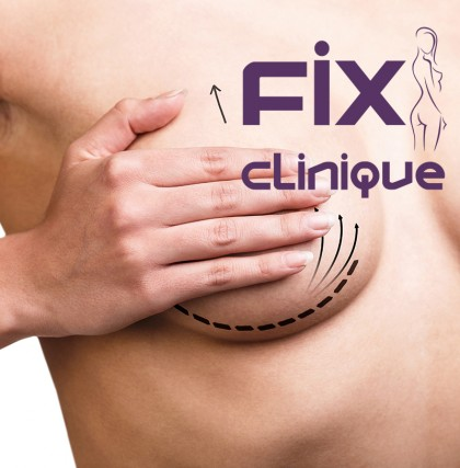 Scăderea elasticității cutanate la nivelul sânilor poate fi corectată doar chirurgical, prin lifting mamar