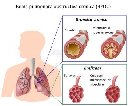 Bronhopneumopatia cronica obstructiva (BPOC)