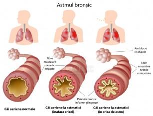 Ghidul pacientului astmatic