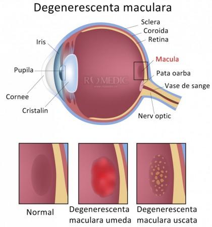 Degenerescenta maculara