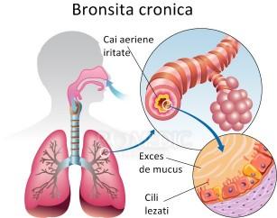 Bronșita cronică
