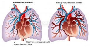 Hipertensiunea pulmonara