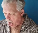 Sindromul de detresa respiratorie a adultului