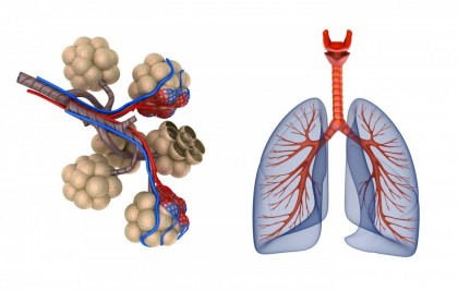 Granulomatoza Wegener - vasculita pulmonara