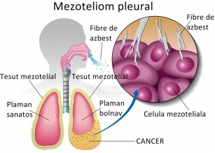Mezoteliomul pleural malign