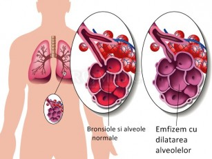 Emfizemul interstitial pulmonar