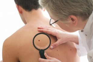Cancer de piele non-melanom