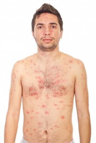 Alergii cutanate
