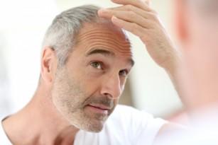 Alopecia (căderea părului)