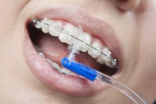 Cum îngrijesc aparatul dentar fix?