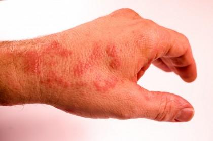 Pete rosii pe piele - primul ajutor