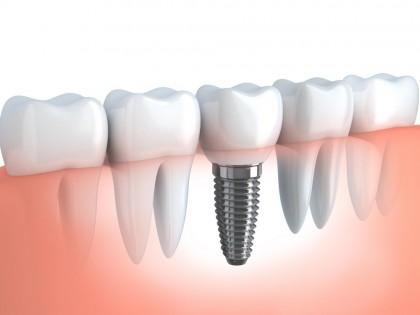 Implantul dentar - Etape înainte și după procedura chirurgicală