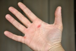 Bataturi la mana (bataturile tenismenului)