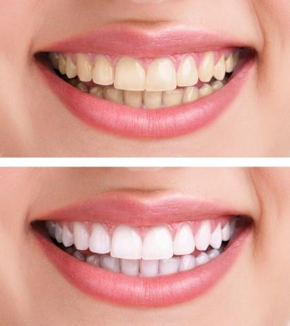 Albirea dinților acasă