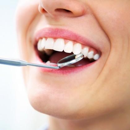 Albirea dentară la cabinetul stomatologic