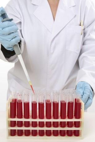 Grupa de sânge ar putea influența pierderea memoriei