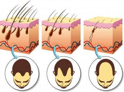 S-a descoperit o legătură între alopecia androgenică și cancerul de prostată