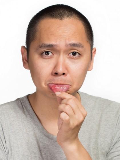 De ce apar aftele bucale?