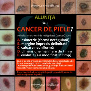 Aluniță sau cancer de piele?