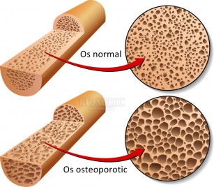 Un nou posibil tratament pentru osteoporoză