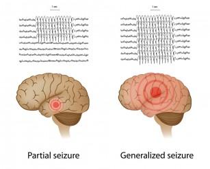Muzica reduce activitatea epileptică