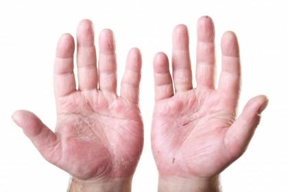Eritrodermia - Dermatita exfoliativa