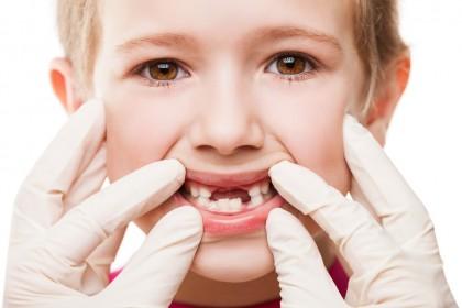 Extracția dinților temporari (de lapte)