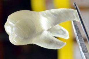 Dinții antimicrobieni printați 3D
