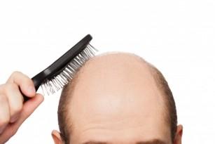 Alopecie androgenica