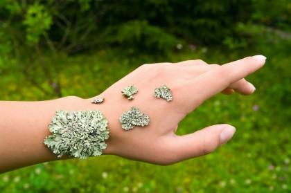 Lichen scleros si lichen atrofic