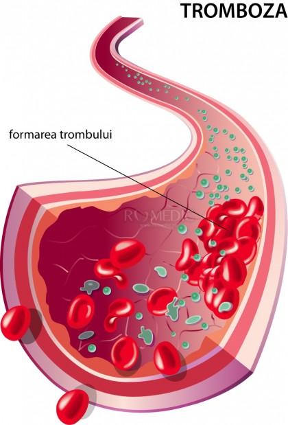 Lipsa de activitate fizică, asociată cu un risc mai mare de tromboză la femei
