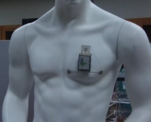 Un dispozitiv care ar putea preîntâmpina atacurile de astm