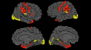 Creierul afectat de schizofrenie ar putea avea capacitatea de a se recupera