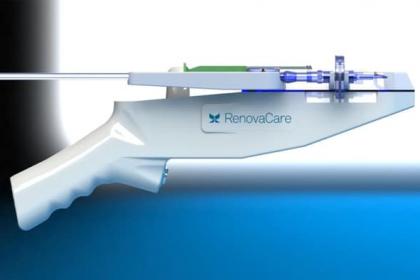 Un nou dispozitiv care ar putea favoriza regenerarea țesuturilor după arsuri